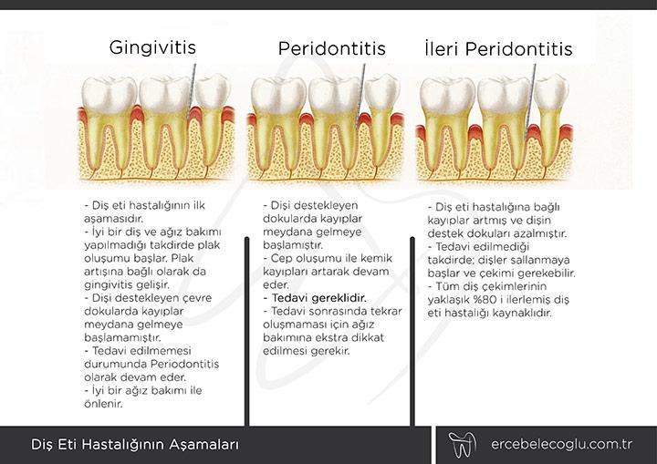 Diş eti hastalığı Gingivitis