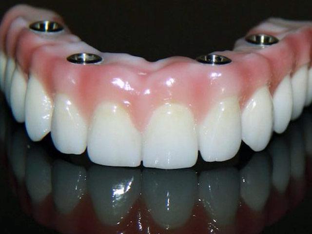 Lamine Diş Düşer Mi Kırılır Mı?