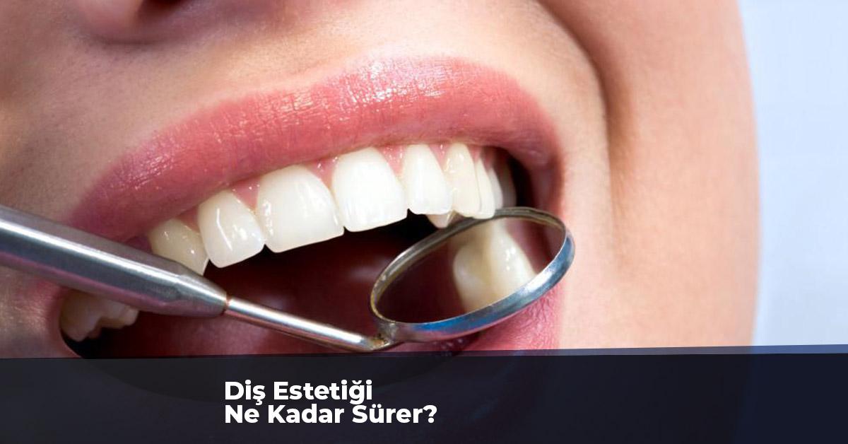 Diş Estetiği Ne Kadar Sürer?