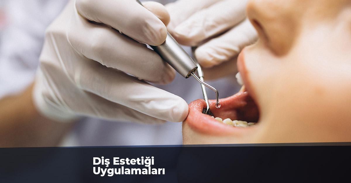 Diş Estetiği Uygulamaları