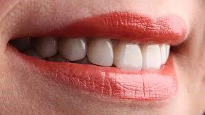 Diş Estetiği Nerelere Yapılır