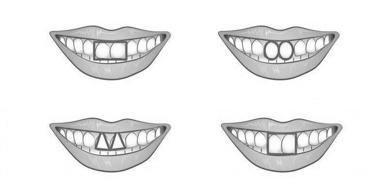 Diş Estetiği Uygulamaları Nasıl Yapılır?