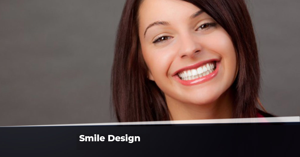 Smile Design Ankara