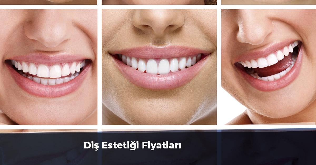 Diş Estetiği Fiyatları 2019