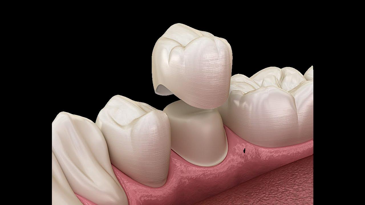 Diş Kaplama