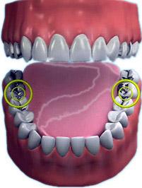 Diş Dolgusu Fiyatları Ankara