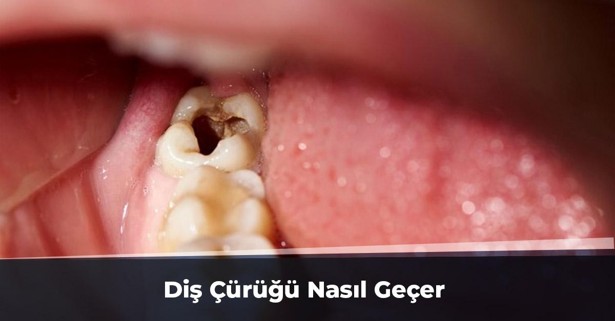 Diş Çürüğü Nasıl Geçer Ankara