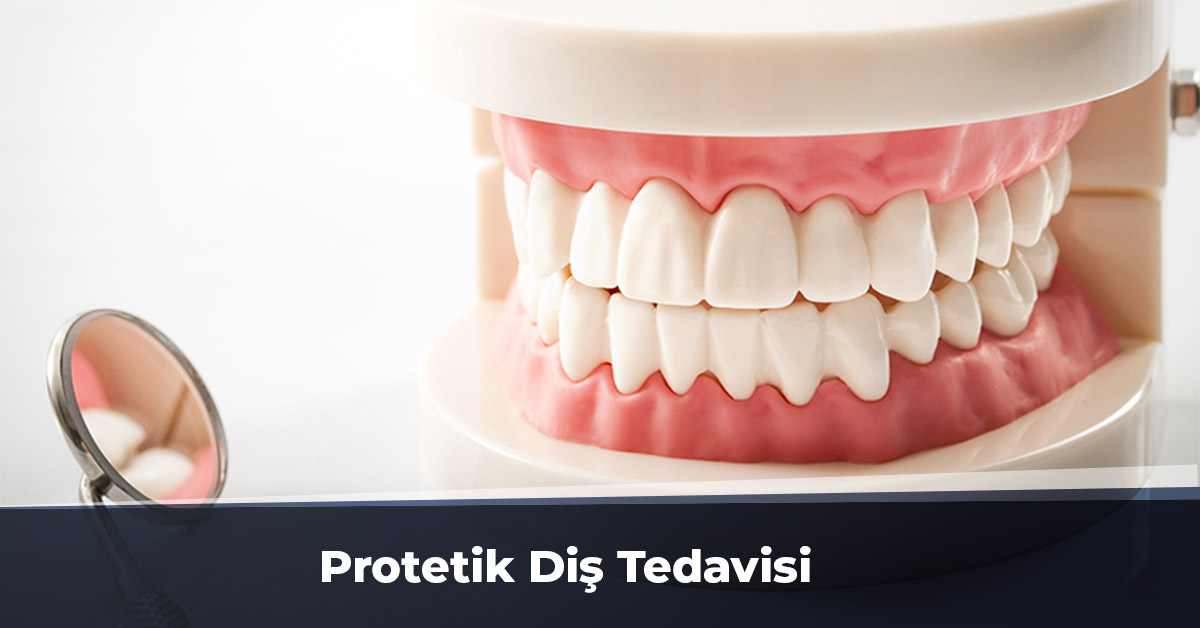 Protetik Diş Tedavisi Ankara