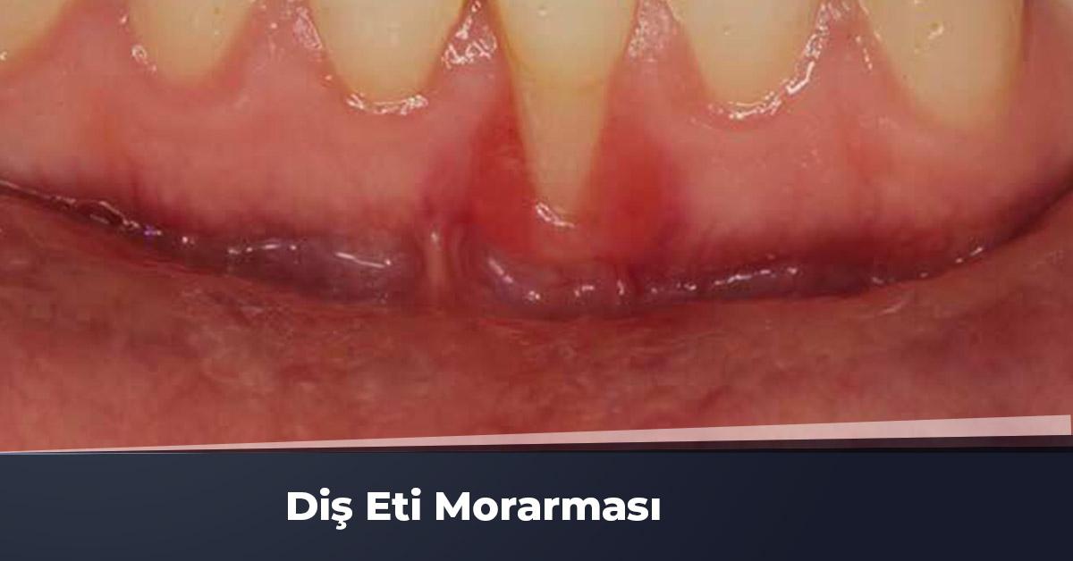 Diş Eti Morarması Nedir