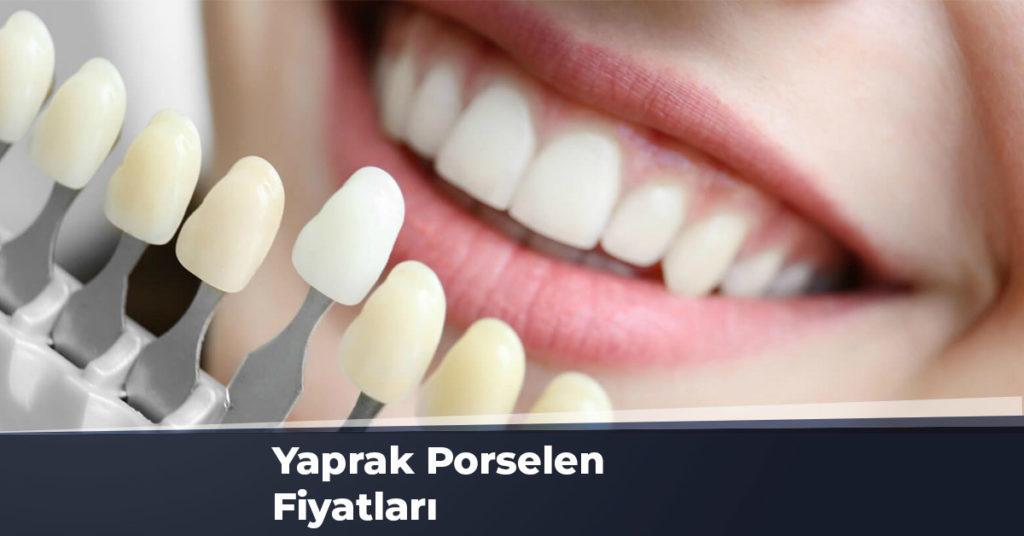 Yaprak Porselen Fiyatları Ankara