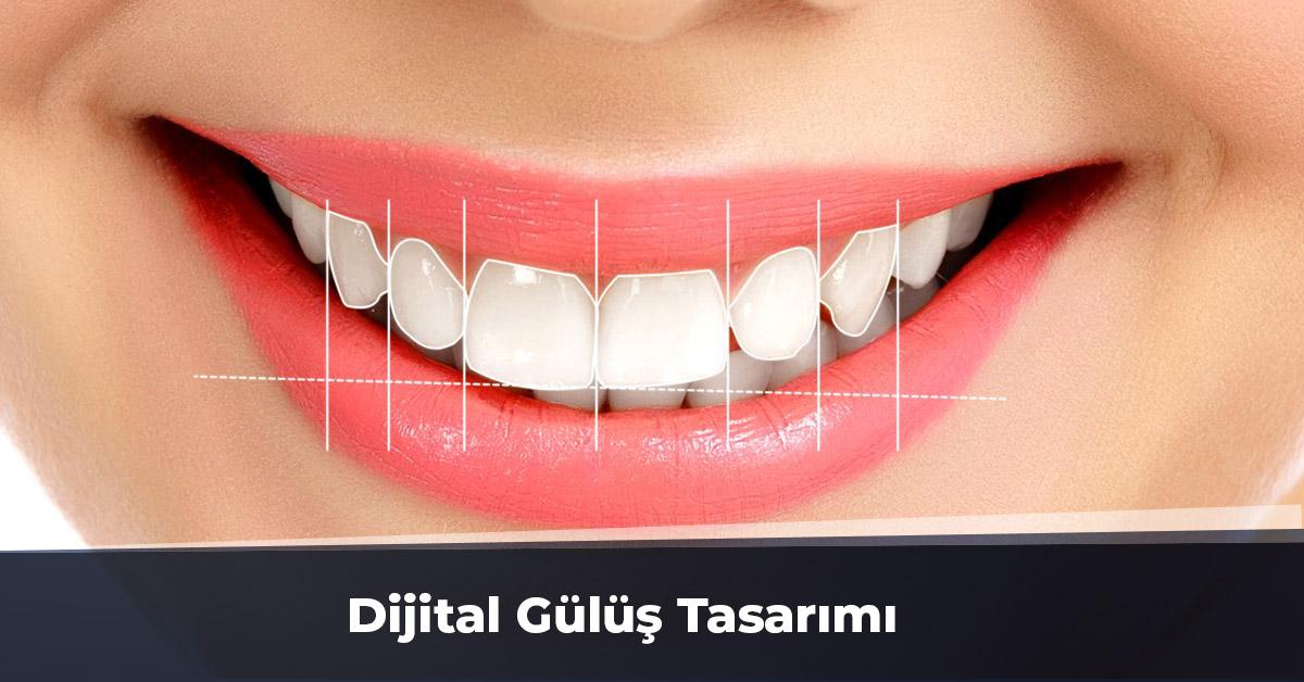 Dijital Gülüş Tasarımı Ankara
