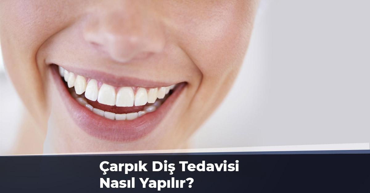 Çarpık Diş Tedavisi Nasıl Yapılır?