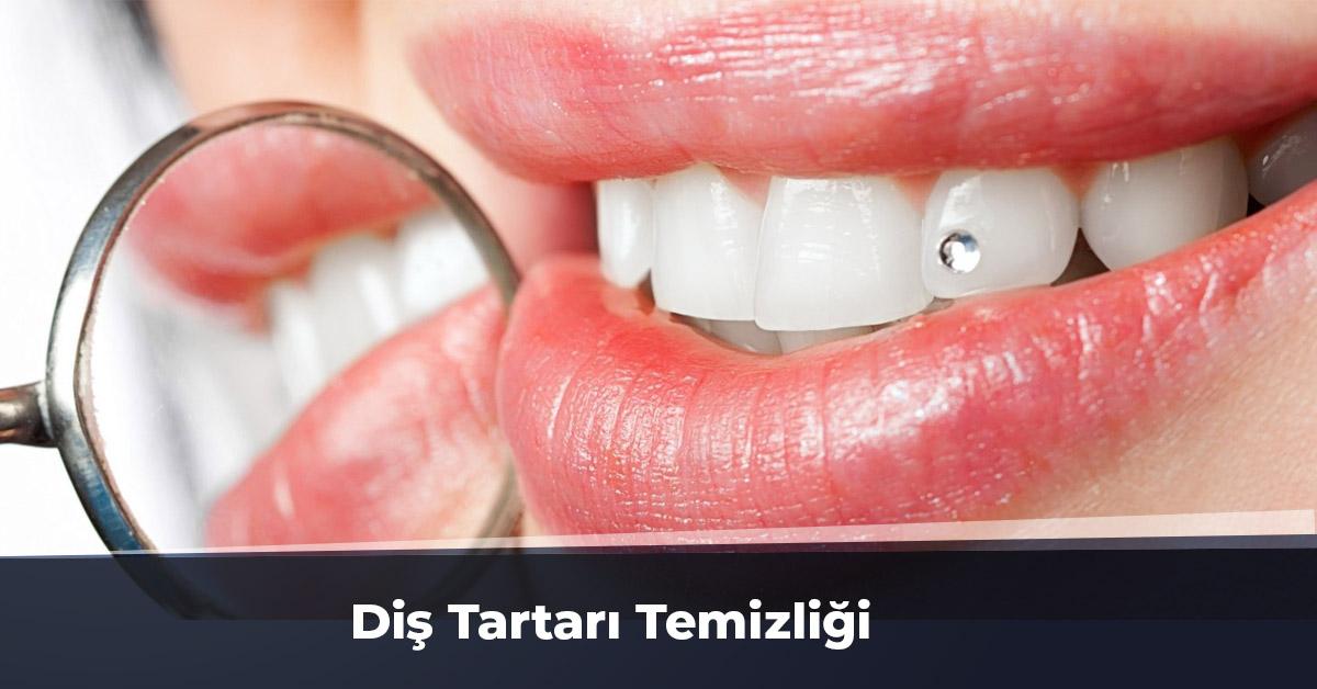 Diş Tartarı Temizliği