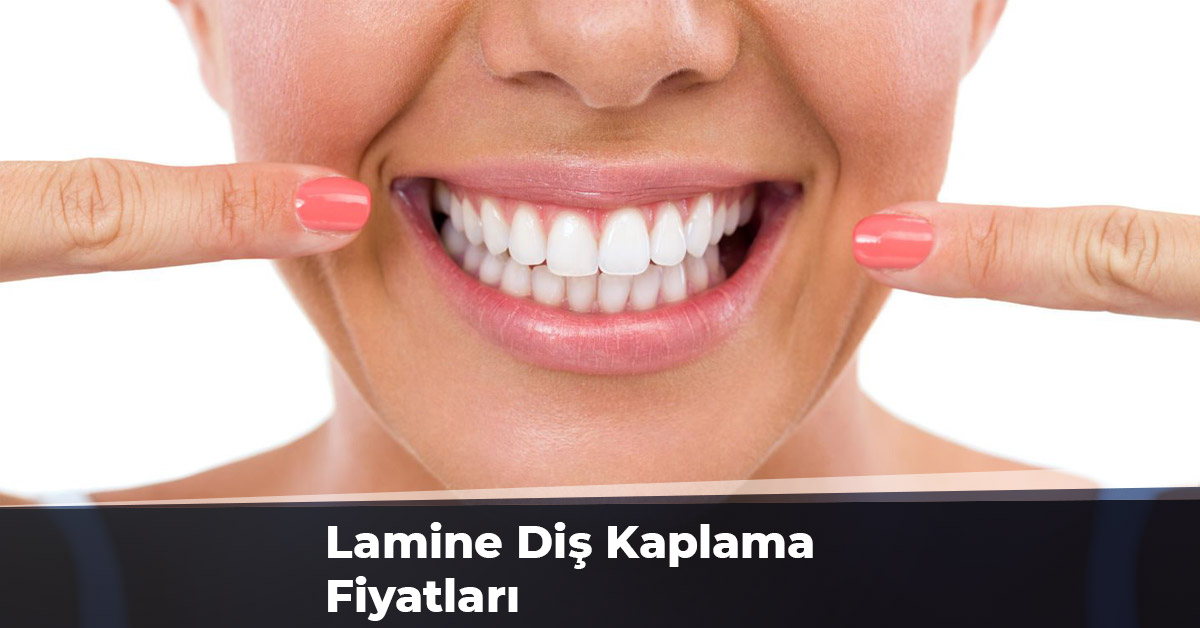Lamine Diş Kaplama Fiyatları