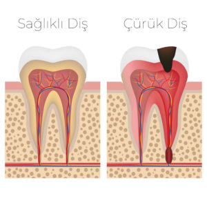 Diş Dolgusu Neden Yapılır?