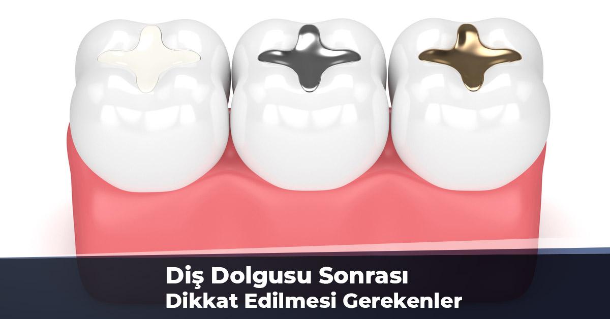Diş Dolgusu Sonrası Dikkat Edilmesi Gerekenler