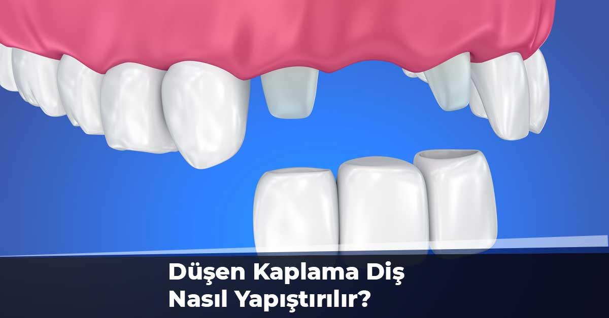 Düşen Kaplama Diş Nasıl Yapıştırılır?