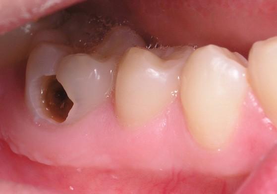 Diş Dolgusu Düşerse Ne Yapılmalı?
