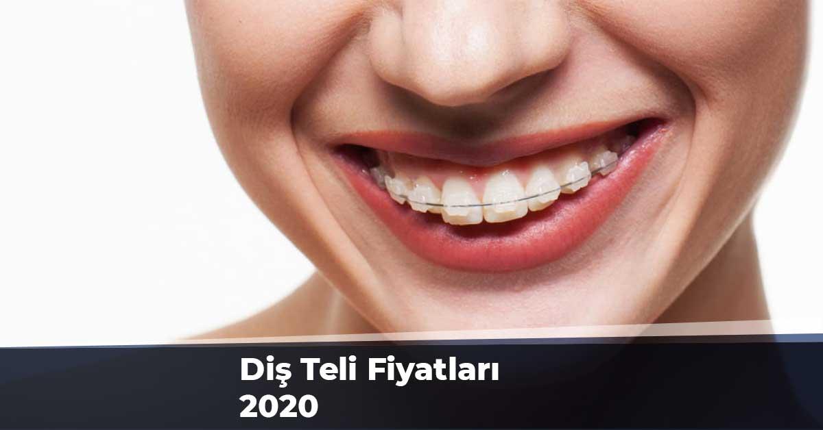 Diş Teli Fiyatları 2020