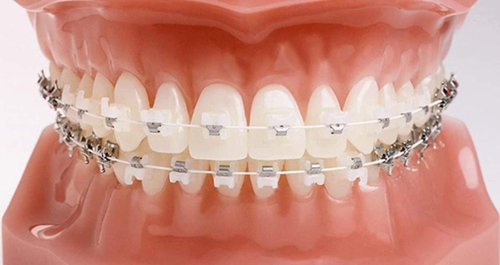 Seramik Diş Teli Fiyatları 2020