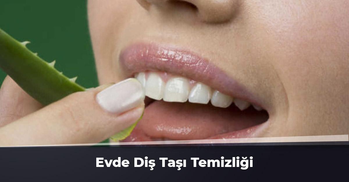 Evde Diş Taşı Temizliği