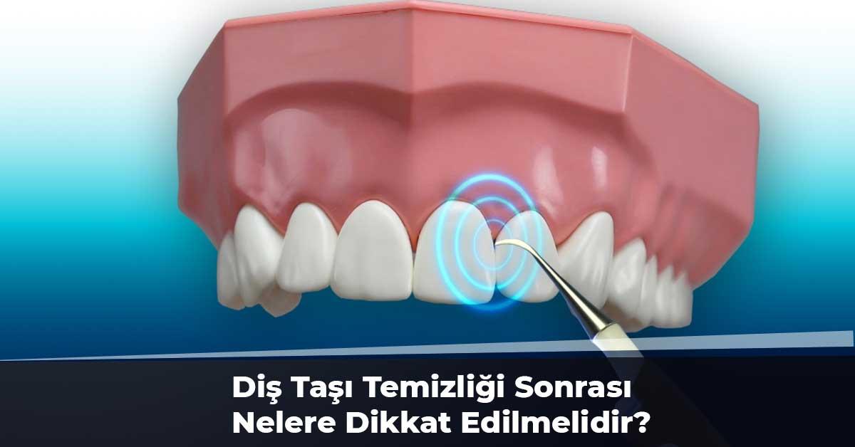 Diş Taşı Temizliği Sonrası Nelere Dikkat Edilmelidir?