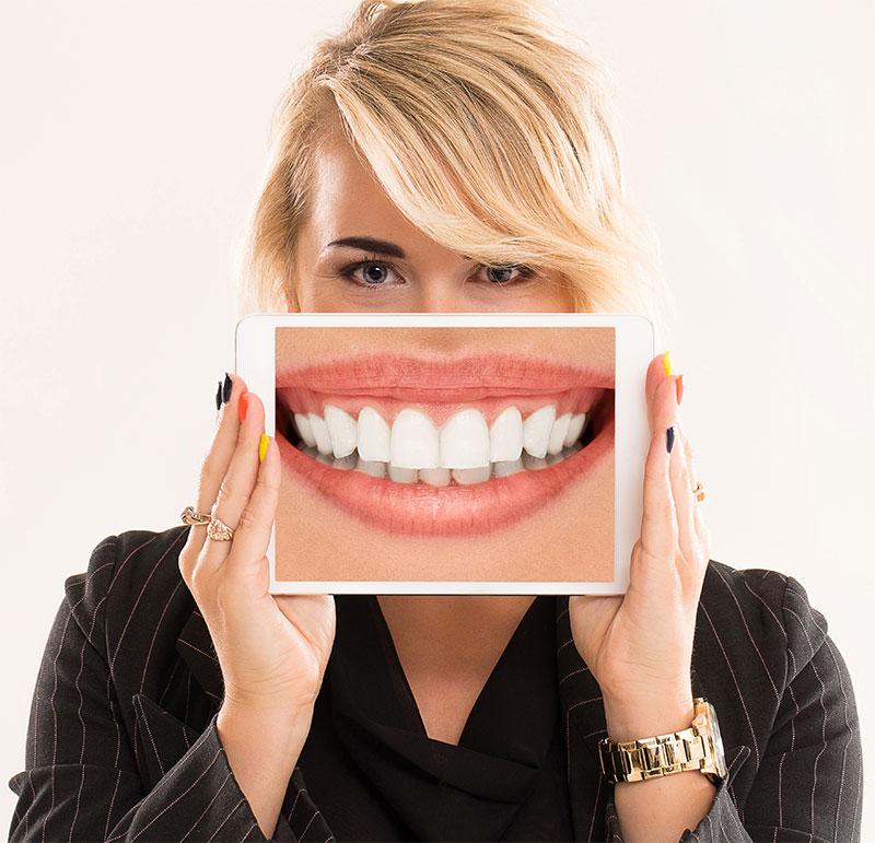 Gülüş Estetiği Nedir?
