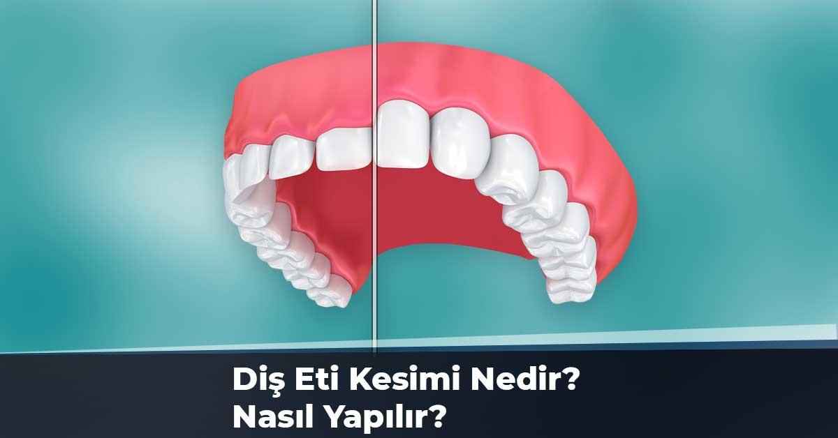 Diş Eti Kesimi Nedir? Nasıl Yapılır?