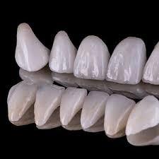 Diş Tasarımı Nedir?