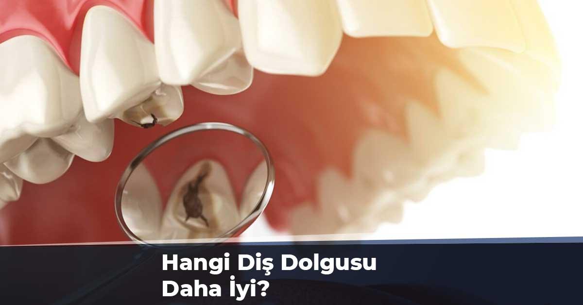 Hangi Diş Dolgusu Daha İyi?