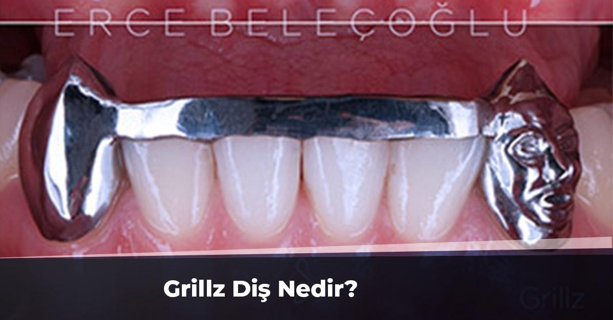 Grillz Diş Nedir?