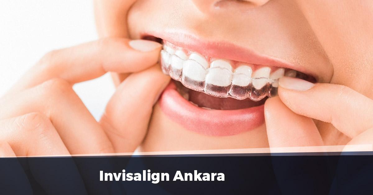 Invisalign Ankara