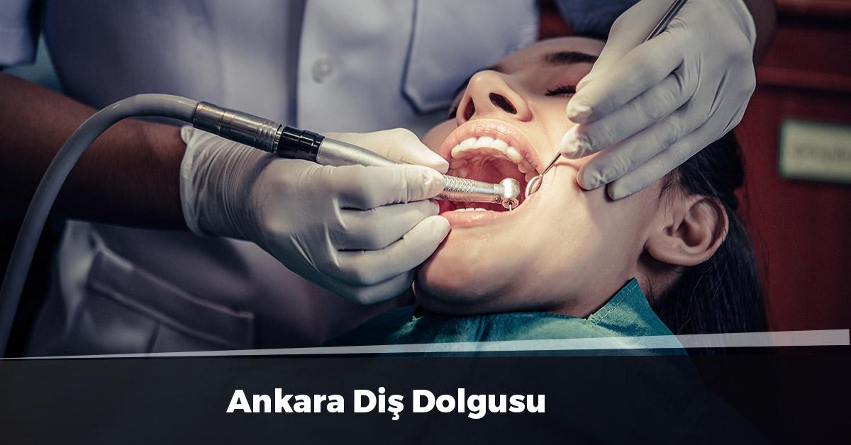 Ankara Diş Dolgusu